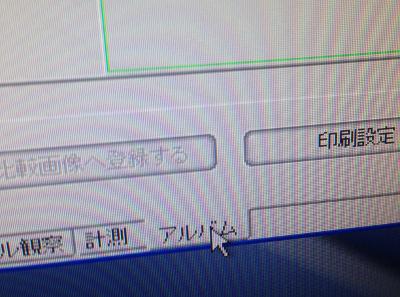 album_tab